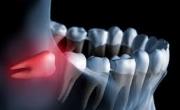 Disodontiasi degli Ottavi (Denti del giudizio)